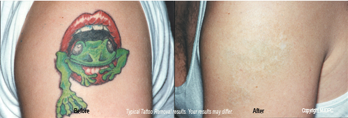 Tattoo removal treatment lumberton cosmetic surgery for Tattoo removal maryland