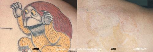tattoo laser removal fayetteville nc | tattoo removal near boston